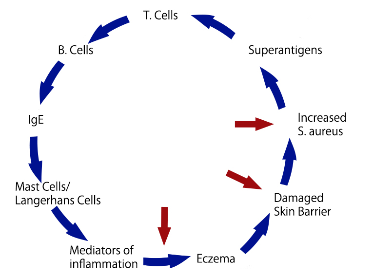 Vicious cycle of S. aureus in atopic eczema. The arrows indicate points where the vicious cycle can be interrupted.